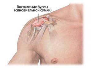 Киста плечевой сустав болезнь суставов от мышки