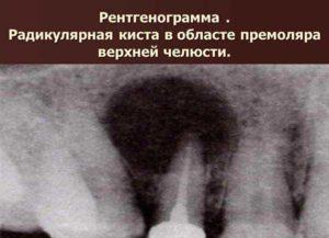 радикулярные кисты рентген