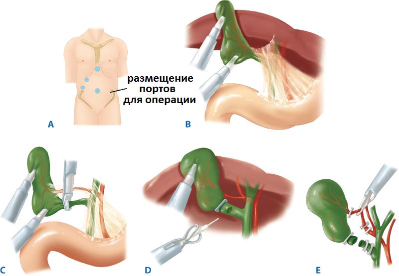 Питание после операции по удалению желчного пузыря