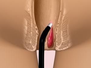 операция прямой кишки