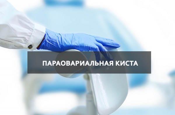 Как вылечить параовариальную кисту яичника