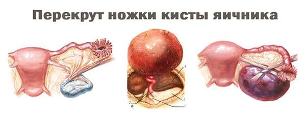 Последствия перекрута ножки кисты яичника
