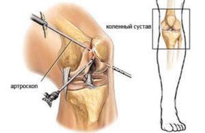 Лечение кисты в колене синовиальная параменисковая ганглиевая субхондральная