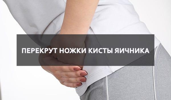 Перекрут ножки кисты яичника: причины, симптомы, код по МКБ 10, лечение кисты яичника на ножке и ее перекрута в Москве