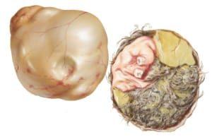 Методы лечения тератомы яичника