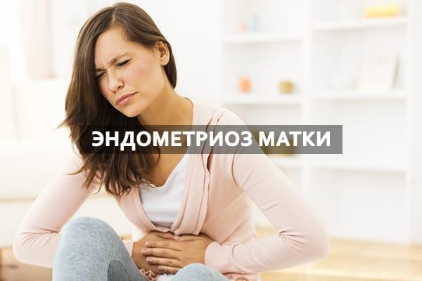 Влияние эндометриоза матки на развитие кист женских половых органов