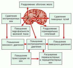 Насколько опасны кисты промежуточного паруса головного мозга