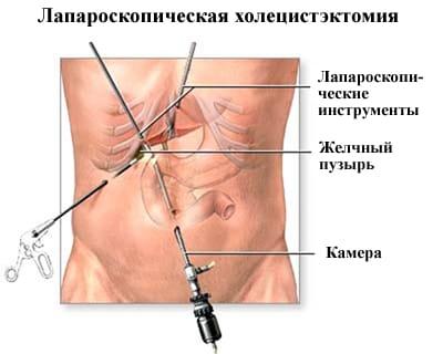 Все про лапароскопическую холецистэктомию