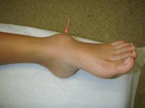 Изображение - Киста голеностопного сустава лечение kista--300x224