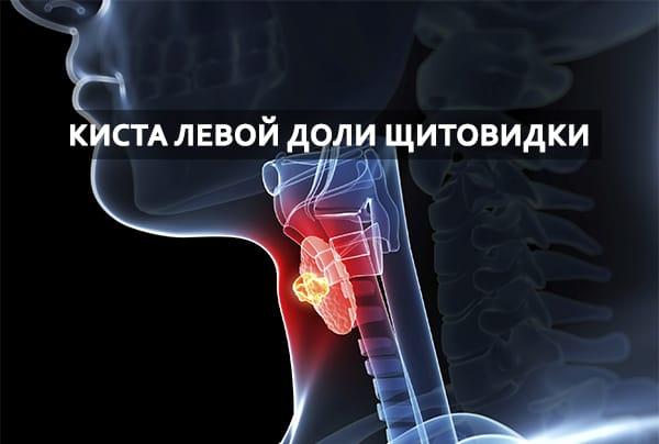 киста левой доли щитовидки