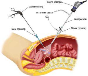Кровотечение при кисте яичника: что делать. Как остановить кровотечения при кисте яичника