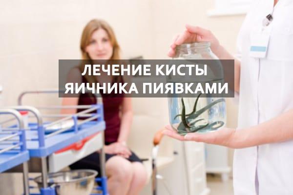 лечение пиявками