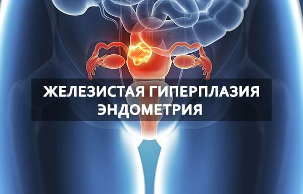 Лечение железистой гиперплазии эндометрия