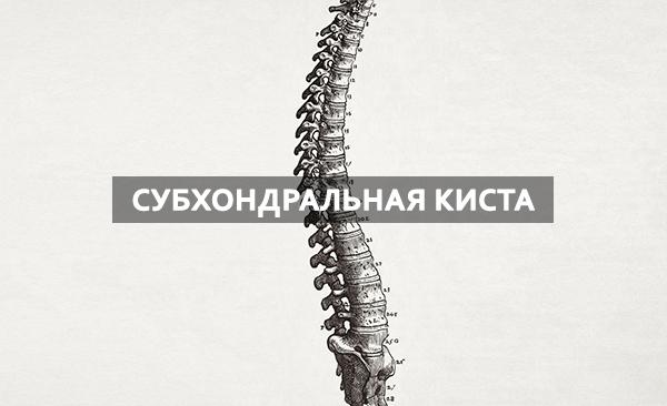 Субхондральная киста подвздошной кости признаки диагностика лечение и профилактика