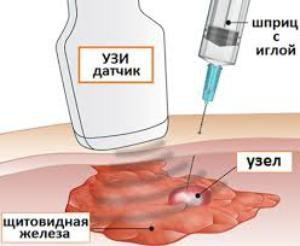 Киста на щитовидной железе опасно ли это: что делать и как лечить
