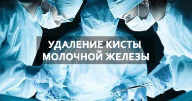 Методы удаления кисты молочной железы