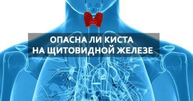 Диагностировали кисту на щитовидной железе — опасно ли это?