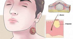 Симптомы и лечение эпидермоидной кисты