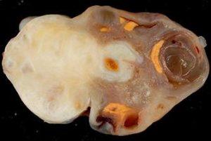 Диагностика и лечение фибромы яичника