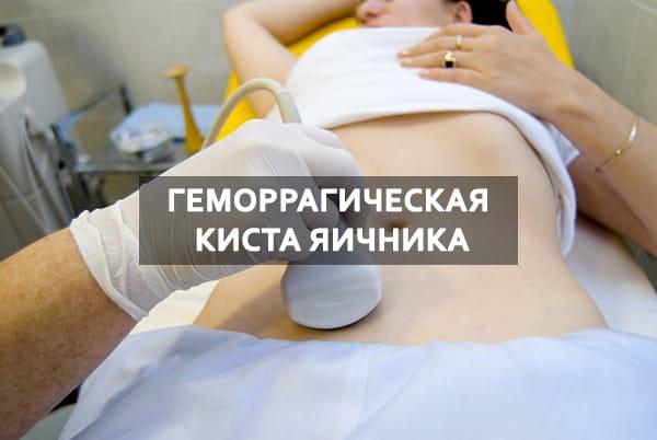 Геморрагическая киста яичника - лечение, симптомы, прогноз
