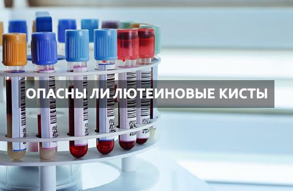 Лечение и симптомы левой и правой лютеиновой кисты яичника