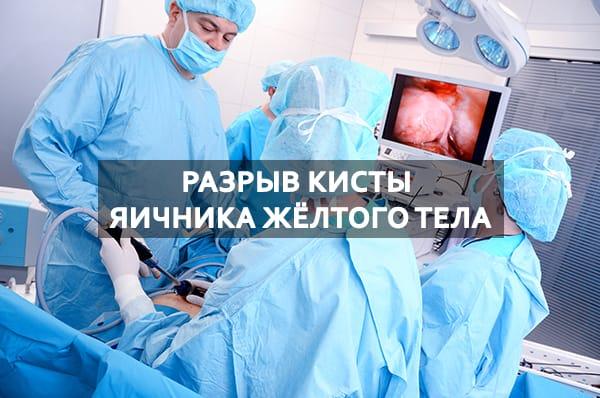 Причины разрыва кисты яичника жёлтого тела и его лечение