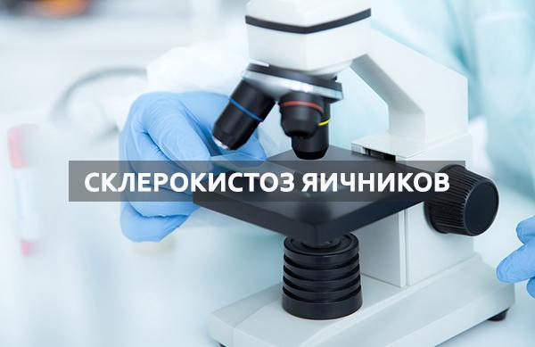 Симптомы и лечение склерокистоза яичников