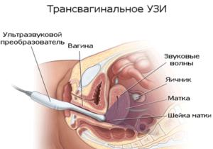 Осложнение и лечение геморрагической кисты яичника