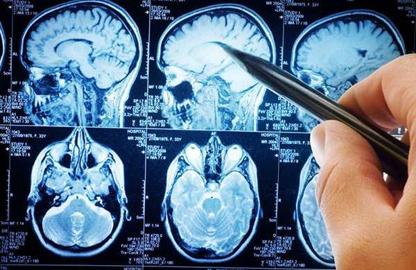 Кавернозная ангиома головного мозга и ее лечение