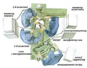 Подготовка к проведению лапароскопии