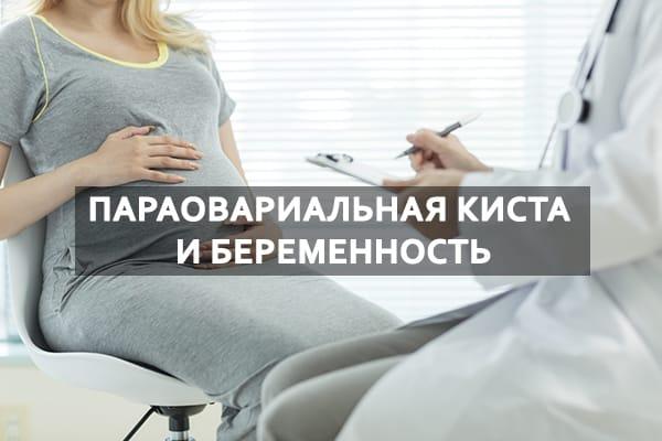 Параовариальная киста при беременности