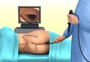 ректормоноскопия