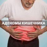 аденомы кишечника