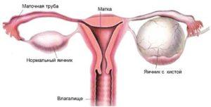 Что такое гиперстимуляция яичников