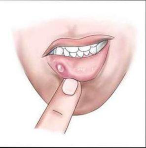 Лечение ретенционной кисты нижней губы