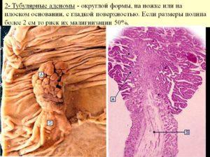 тубулярные аденомы