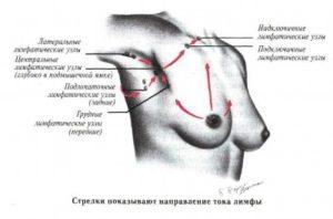 Причины и лечение шишки в подмышечной впадине
