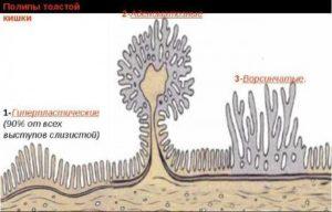 Особенности гиперпластического полипа толстой кишки