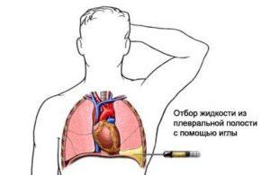 Особенности плевральной пункции