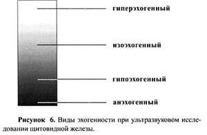 Гипоэхогенное образование в яичнике