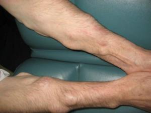 Лечение липомы на коже народными средствами
