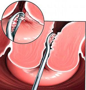 Виды биопсии шейки матки и подготовка к процедуре
