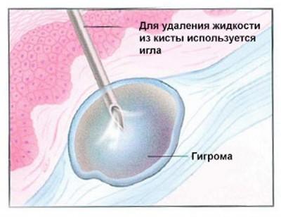 Что такое гигрома и чем она отличается от кисты