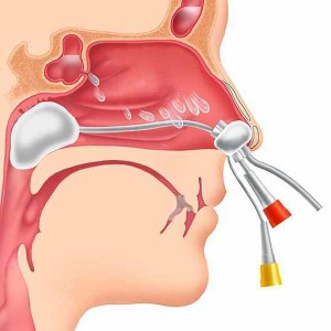 Инструкция промывания носа по Проетцу