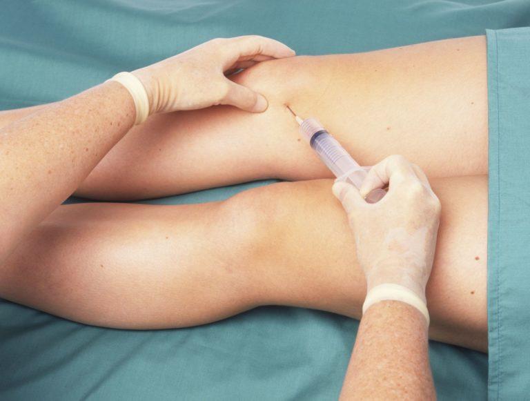 недостаток жидкости в коленном суставе