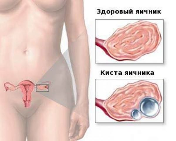 Заболевания яичников влияют на секс