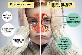 Как отличить простуду от ОРВИ? Симптомы у взрослых
