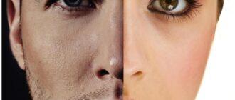 Различия кожи у мужчин и женщин