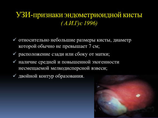 Эндометриоидная киста яичника лечение